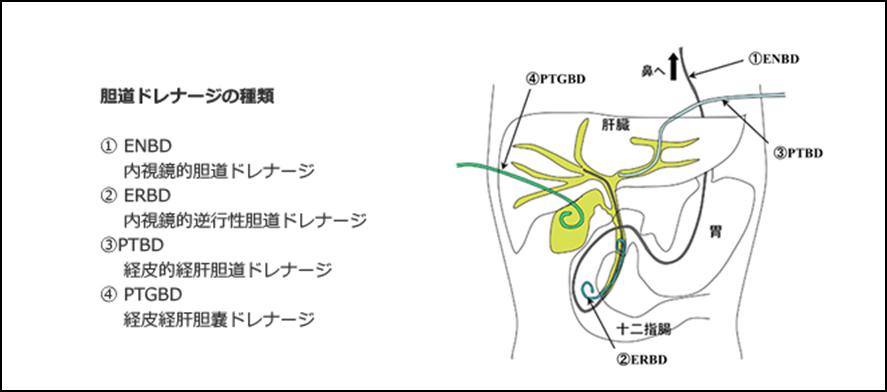 胆管炎の治療