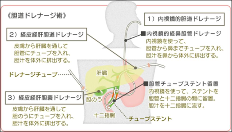 閉塞 性 黄疸 症状