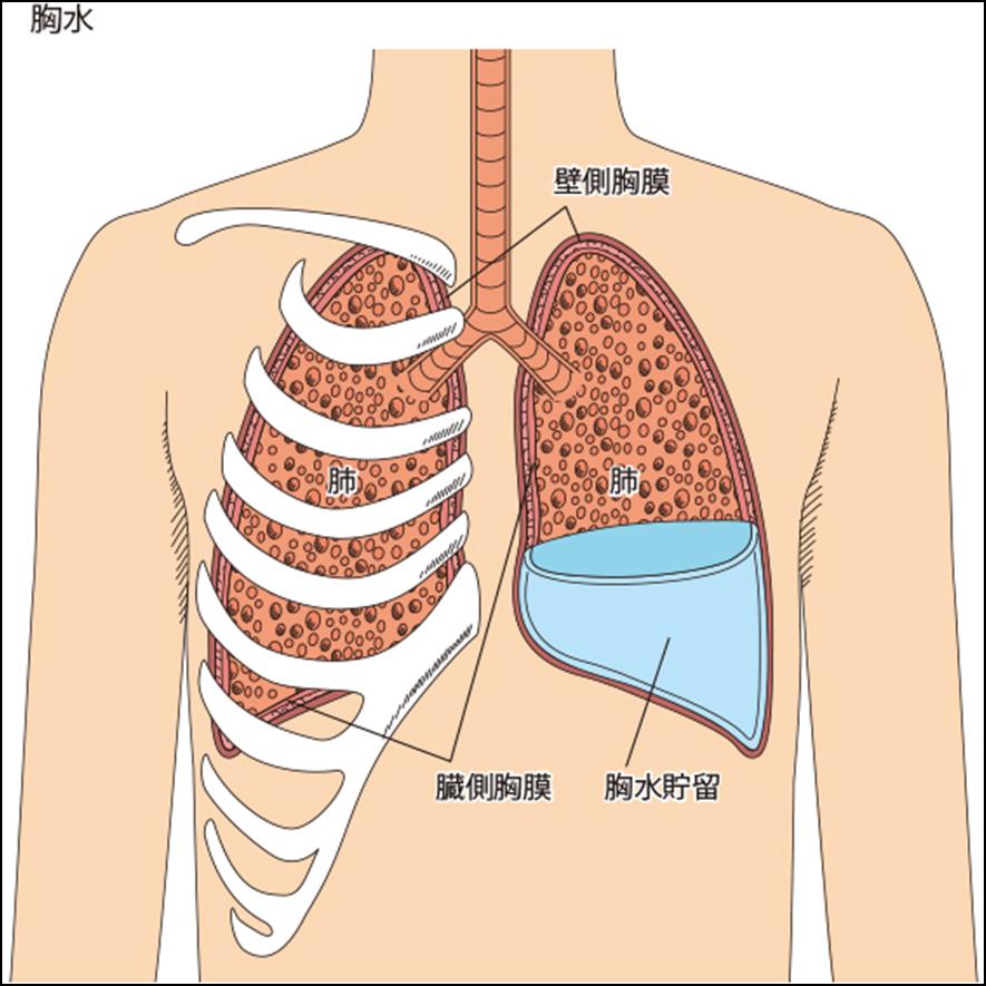 「胸膜癒着術」の画像検索結果