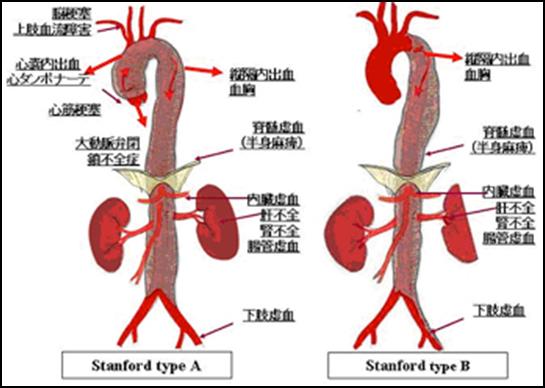 大動脈解離の看護 分類(A型B型)...