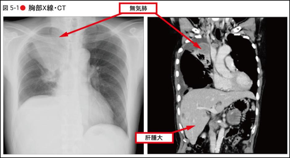 無気肺とは
