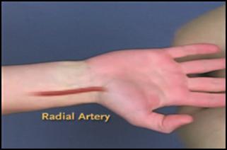 動脈ラインの挿入部位