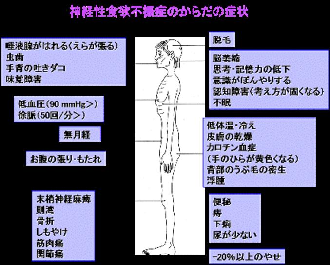 摂食障害の看護