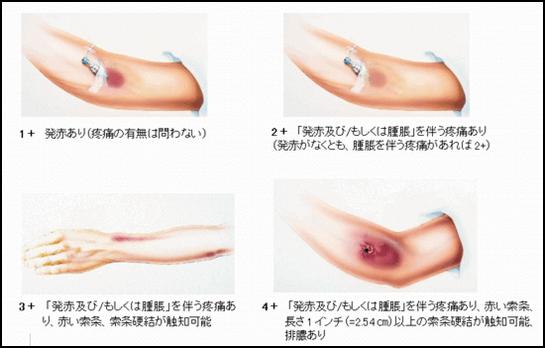 静脈内点滴の合併症