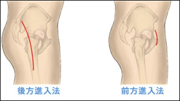 人工 骨頭 置換 術 禁忌 肢 位